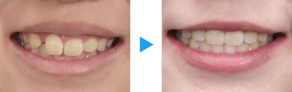 永久歯列過蓋咬合治療前後口元