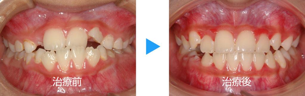 混合歯列反対咬合治療前後正面観