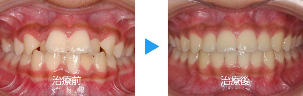 永久歯列叢生非抜歯治療前後正面観
