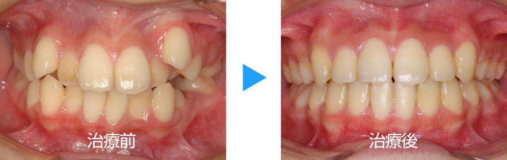 永久歯列叢生抜歯治療前後正面観