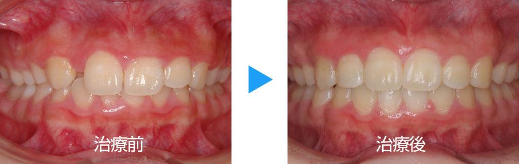 永久歯列過蓋咬合治療前後正面観