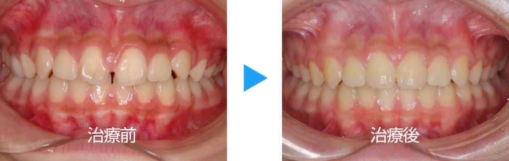 永久歯列正中離開治療前後正面観