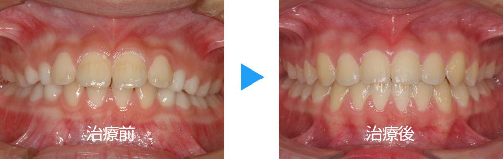永久歯列上顎前突非抜歯治療前後正面観