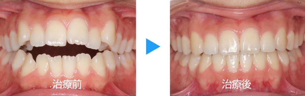永久歯列開咬治療前後正面観