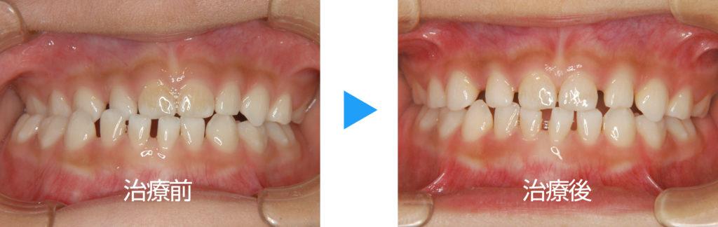 乳歯列交叉咬合の治療前後正面観