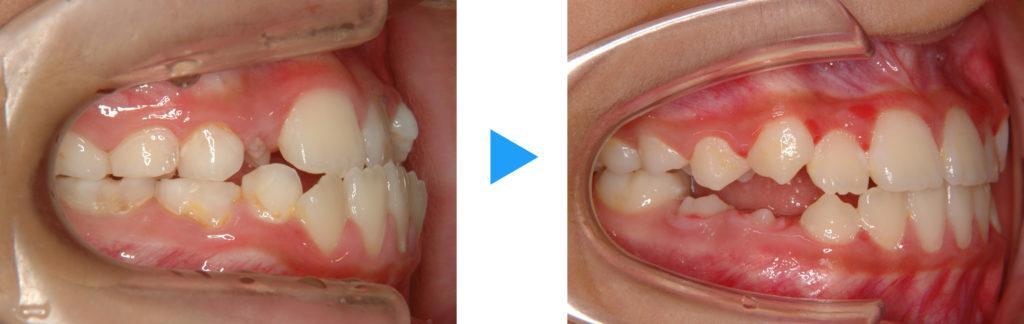 混合歯列反対咬合治療前後側面観