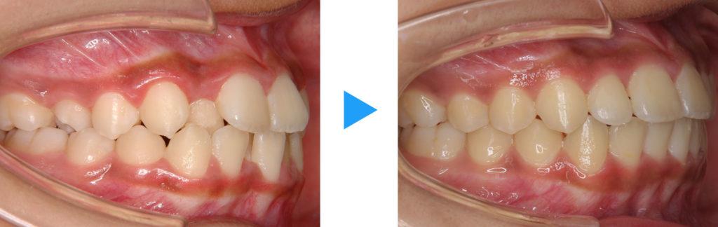 永久歯列叢生非抜歯治療前後側面観
