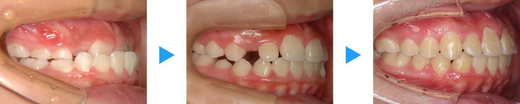 下顎前突治療前後側面観