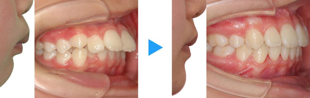 永久歯列上顎前突抜歯治療前後側面観