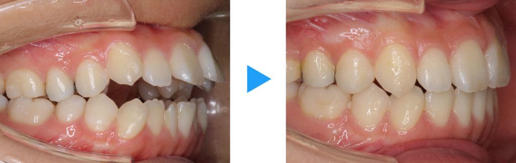 永久歯列開咬治療前後側面観