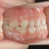 乳歯列反対咬合